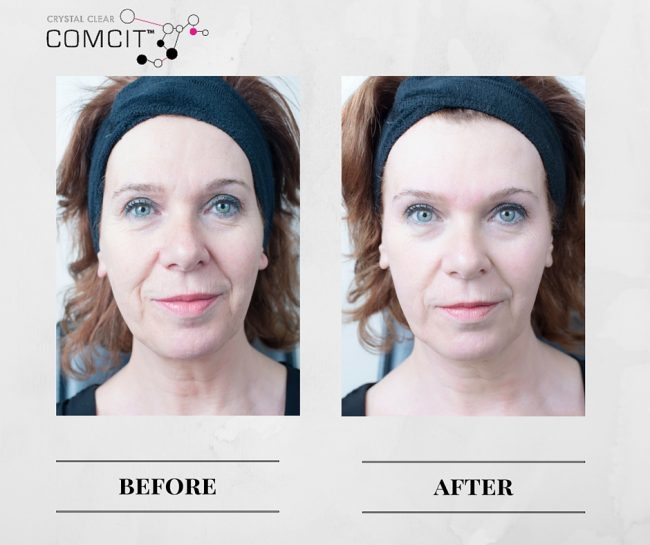 Crystal Clear COMCIT Before And After 2 APPROVED